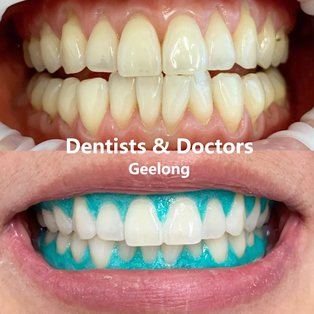 Dentists n Doctors Teeth Whitening
